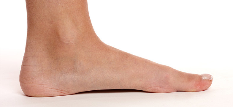 Best Work Shoes For Flat Feet