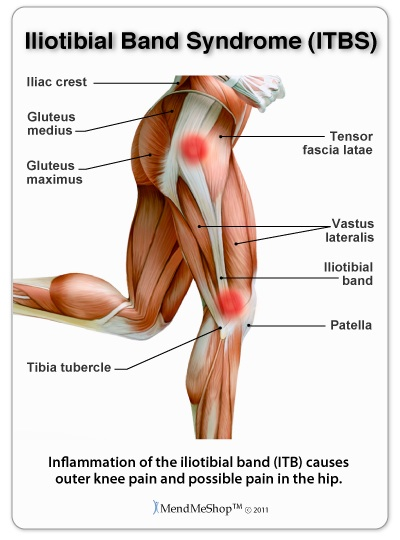 Iliotibial Band Syndrome (ITBS), liac crest, Gluteus medius, Tensor fascia latae, Gluteus maximus,Vastus lateralis, Iliotibial band, Tibia tubercle, Patella, Inflammation of the iliotibial band (ITB) causes outer knee pain and possible pain in the hip, MendMeShop TM ©2011