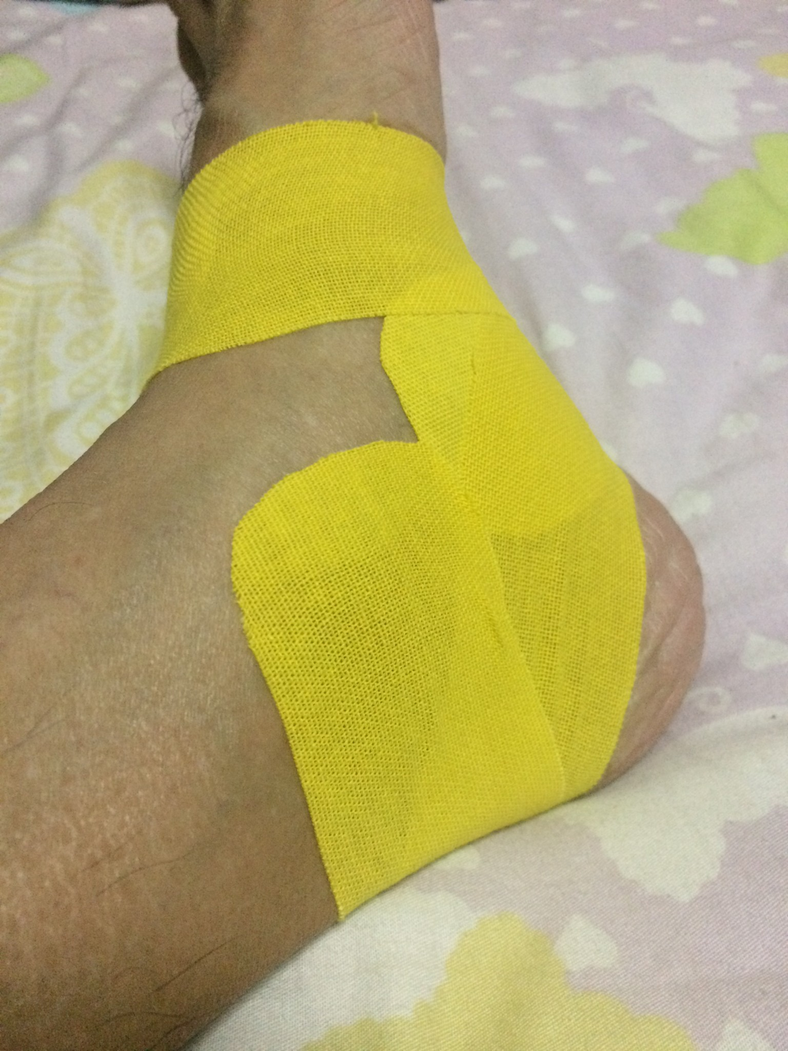 Amateurish taping