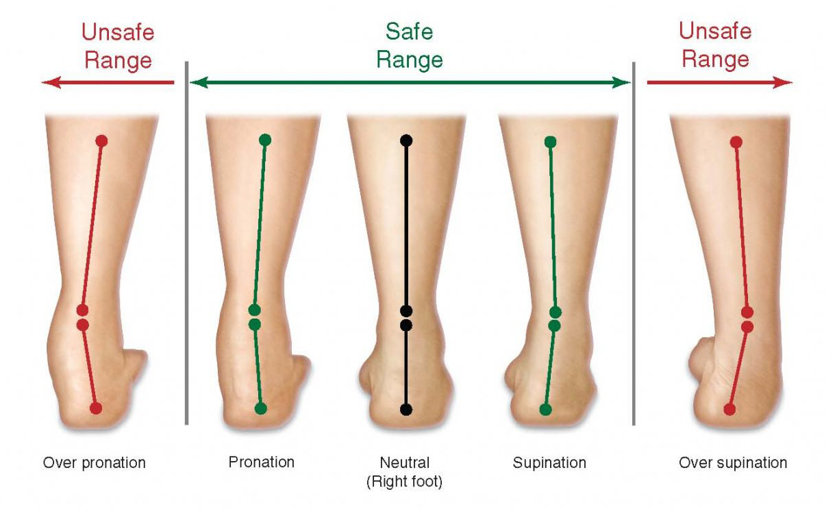 eb7a490454 Do you know what's your pronation type? | JustRunLah!