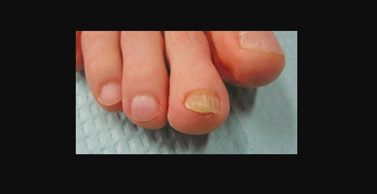 How Runners Should Deal with Toenail Fungus | JustRunLah!